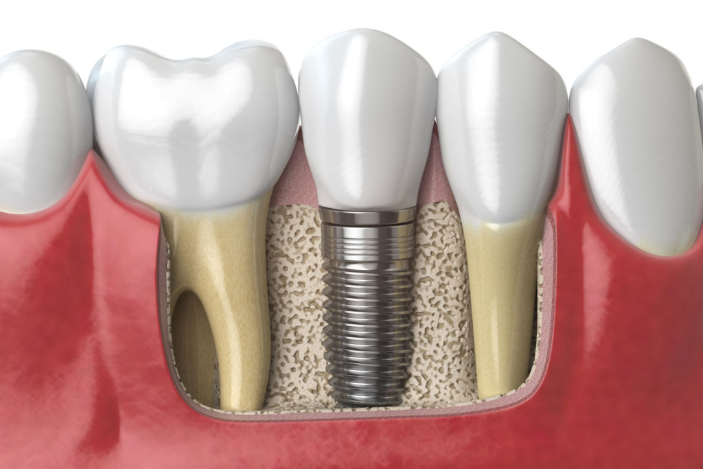 bone grafting roanoke oral surgery