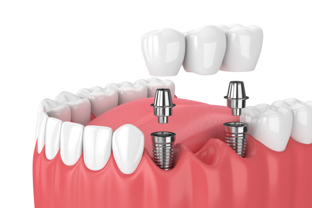 fixed_bridge_dental_implant_in_roanoke