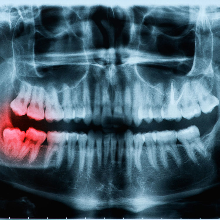 impacted tooth wisdom teeth