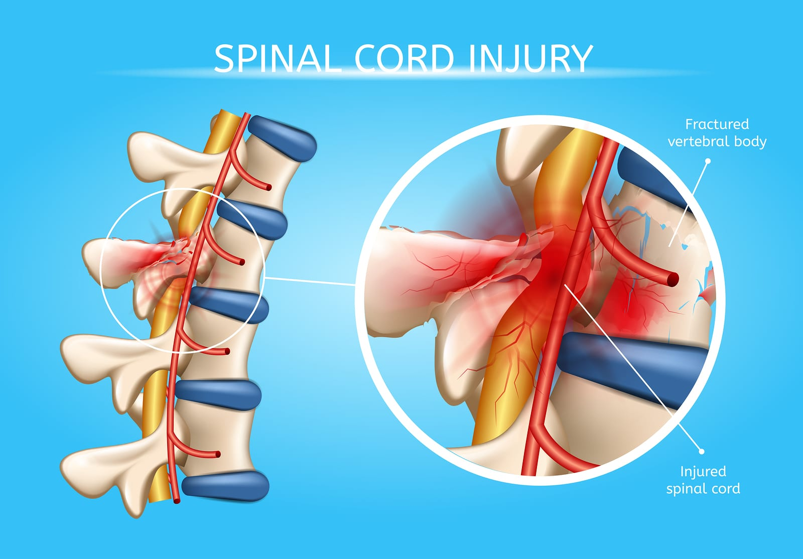 Spinal Cord Injury sustained as a result of an accident causes damage to the central nervous system. ©BigStockPhoto