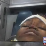 St. Louis Woman Takes A Selfie After Being Shot In The Head During Ferguson Protests.