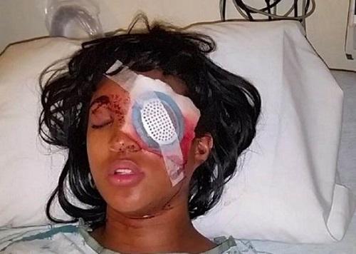 Pregnant St Louis woman loses left eye During Ferguson protest