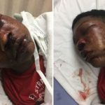 17-Year-Old Alabama Kid Was Kicked, Punched And Assaulted By Police While In Handcuffs.