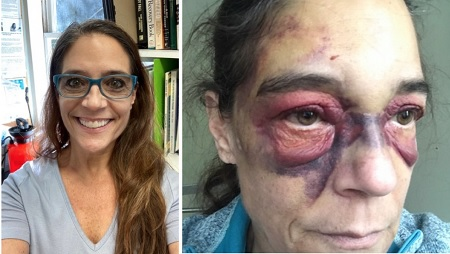56 year-old Grandmother ends up bruised in Jail after calling 911 for help.