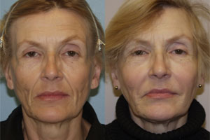 Facial Lines and Wrinkles