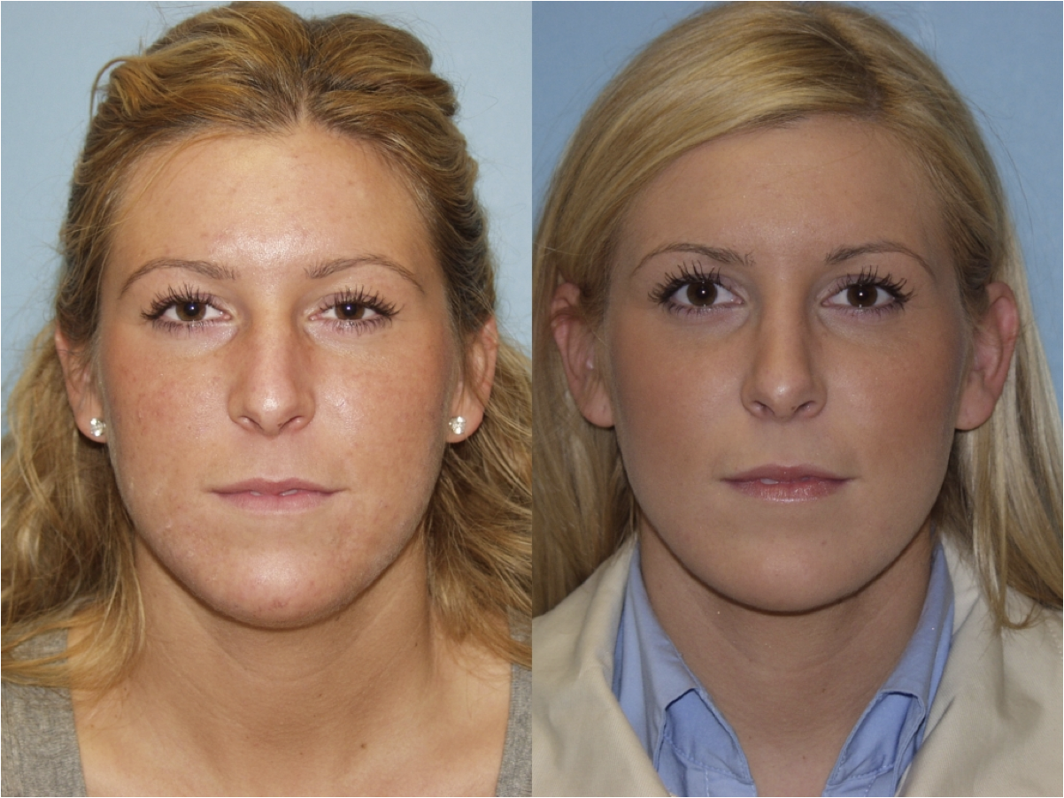 Orland Park Nose Job Surgeon