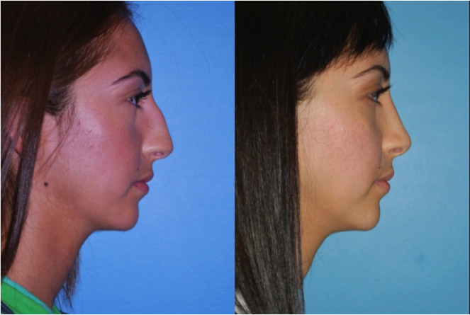 Oak Park Rhinoplasty Doctors