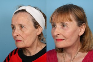 Facelifts and Necklifts