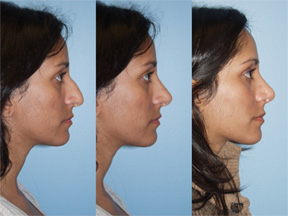 Digital Imaging and Photography Before Plastic Surgery | Chicago, IL