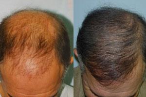 Hair Transplant and Restoration