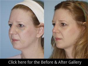 Rhinoplasty Chicago, IL | Nose Job Surgery