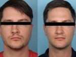 male_rhinoplasty