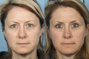eyelid surgery, blepharoplasty dr sidle chicago