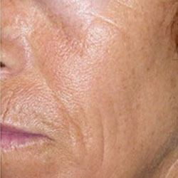 after collagen induction