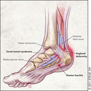 Tibial Nerve Week 8 Hansons Marathon Method