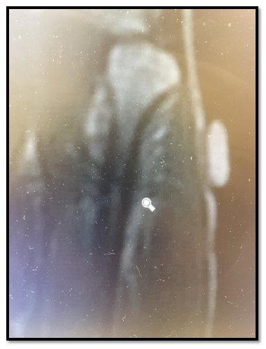 perry-stress-fracture-x-ray
