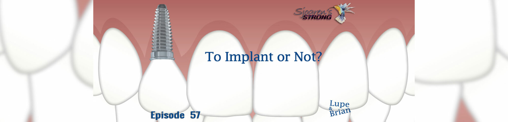 To Implant or Not