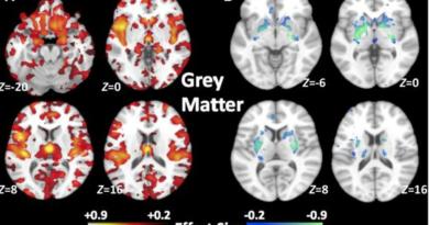 La esquizofrenia no deja rastros…