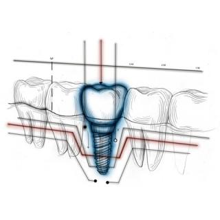 Implantes Dentales Dentisalud