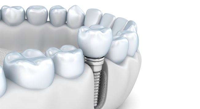 Implante Dental Superior Dentisalud