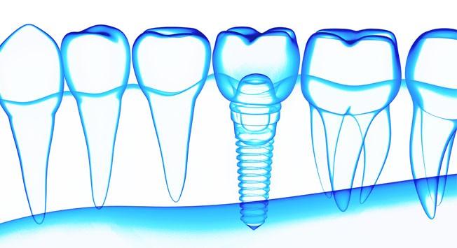 Implantes Dentales Super Premium Dentisalud