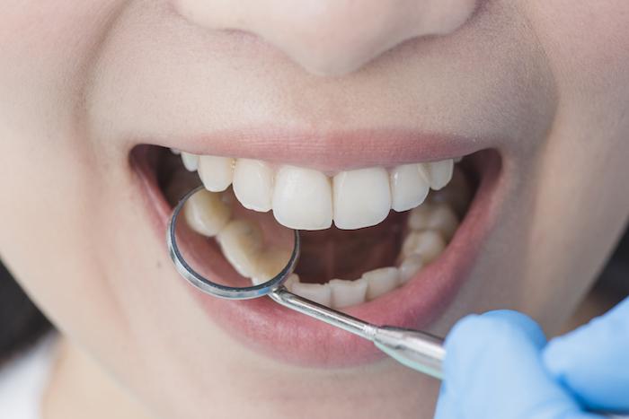 Cómo cuidar salud oral