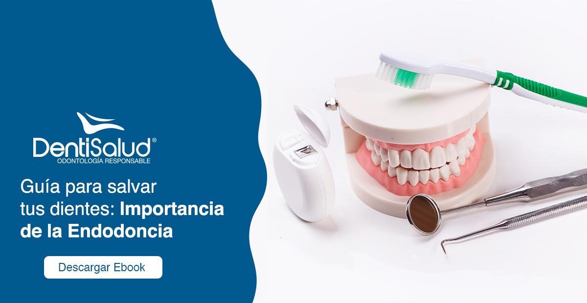 Guía para salvar tus dientes endodoncia
