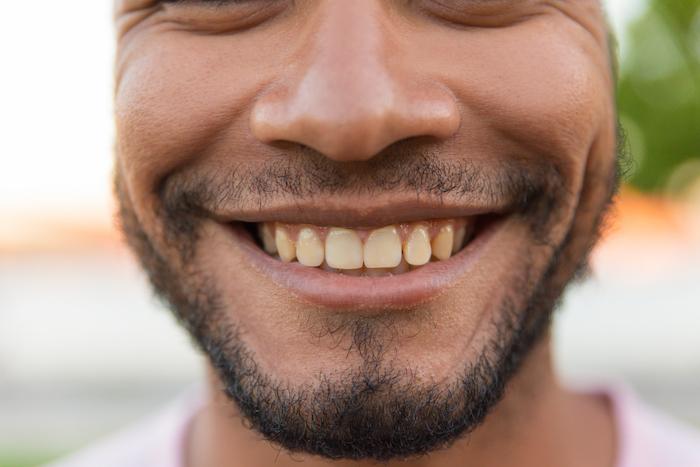 Blanqueamiento dental y dientes amarillos