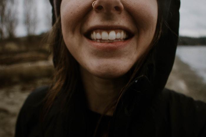 Diseño de sonrisa o dientes desgastados