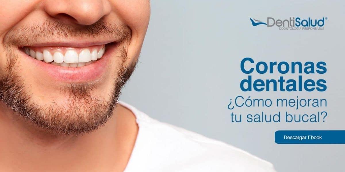 Ebook Coronas Dentales