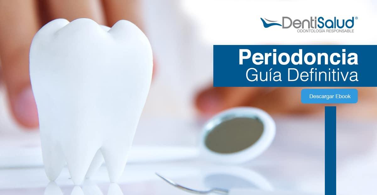 Guía sobre las periodoncias