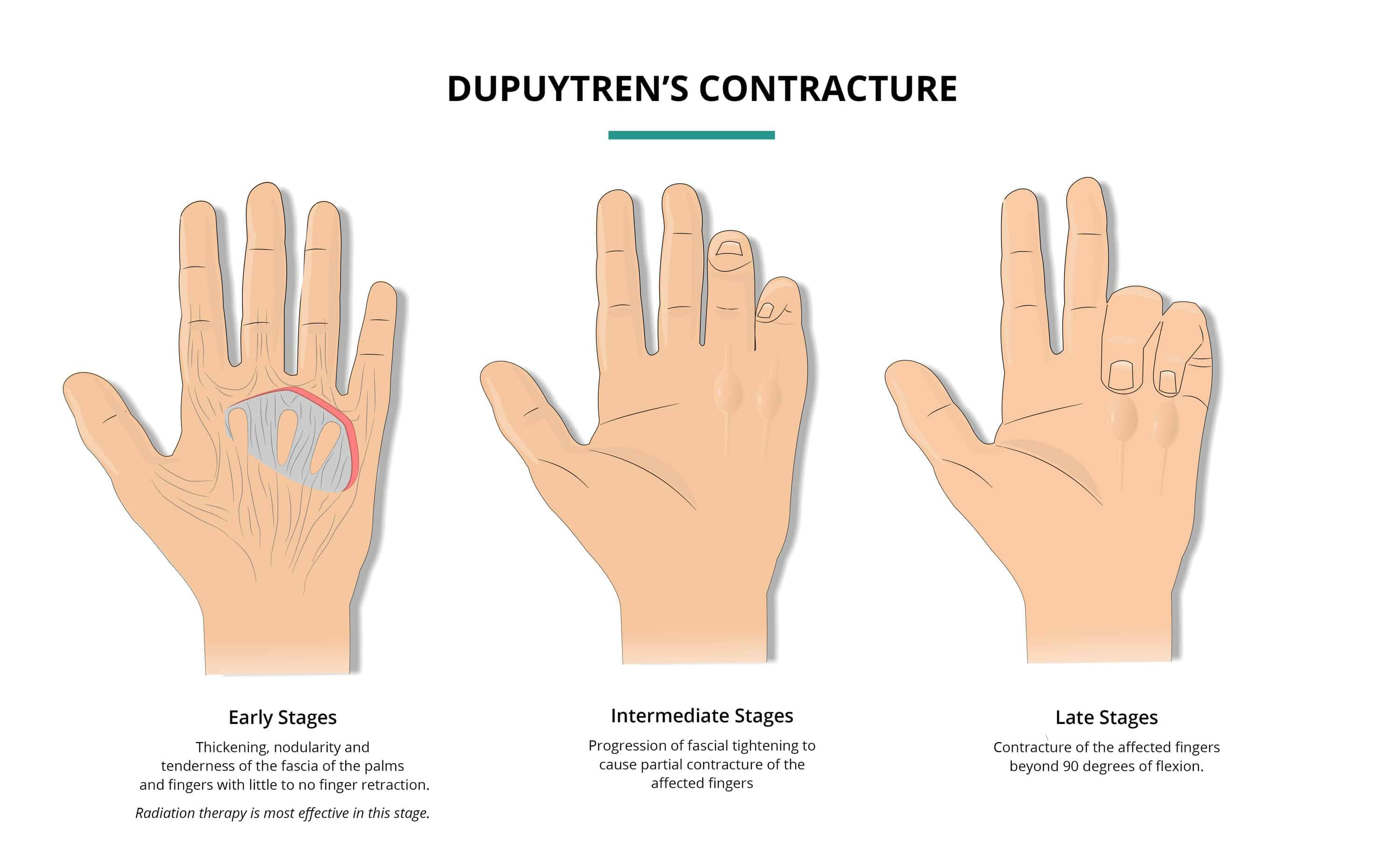dupuytrens_contracture_progression_nodules_radiation_therapy_graphic-radiation_tavares