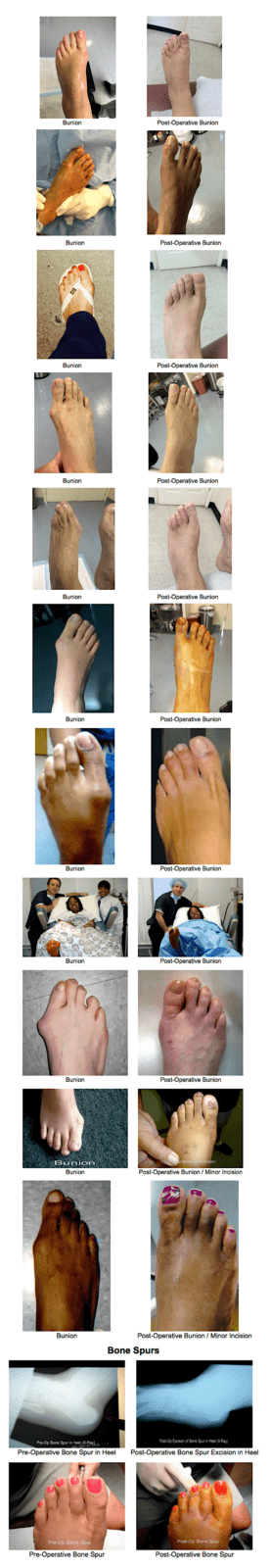 Bunion Surgery NYC | Podiatrist New York