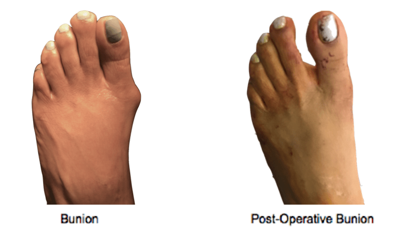 Bunion-Surgery-NYC