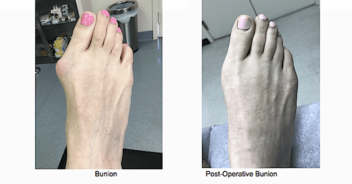 Bunion Surgery