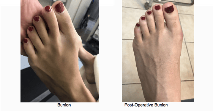 Bunion Surgery NYC