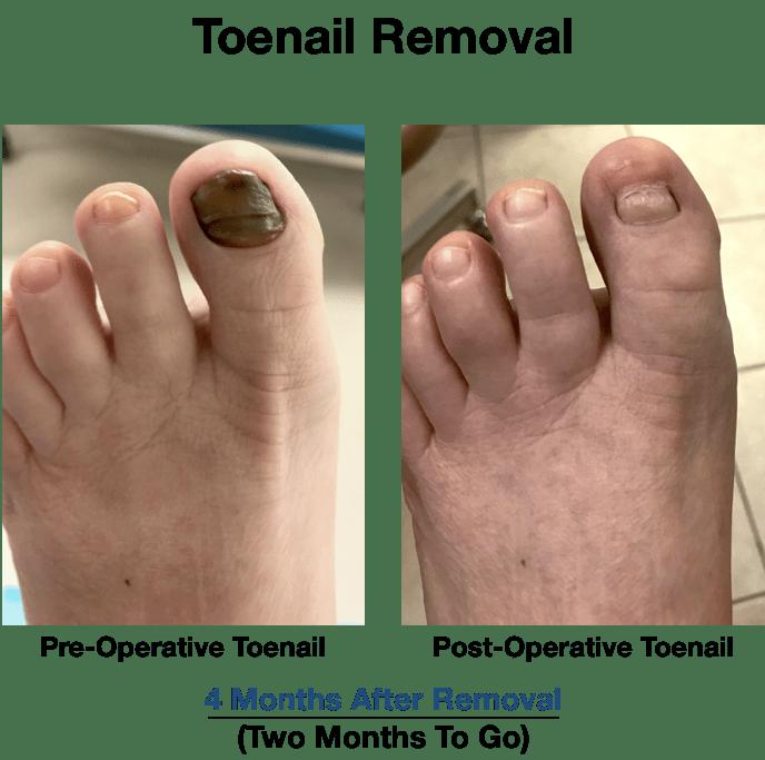 Toenail Removal NYC