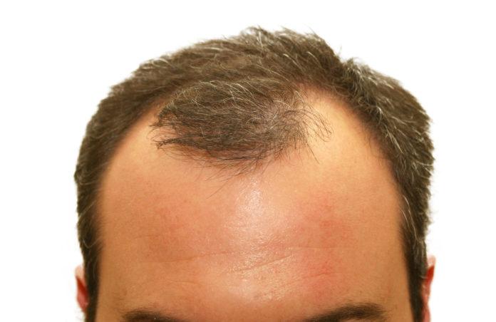 balding hair