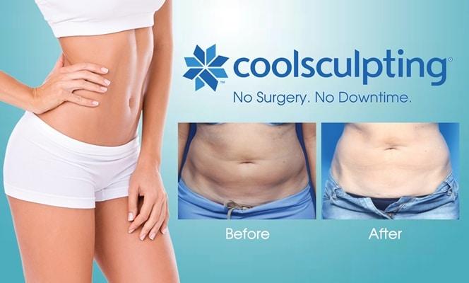 coolsculpting fat freeze