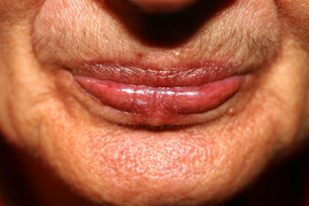 what causes lip lines