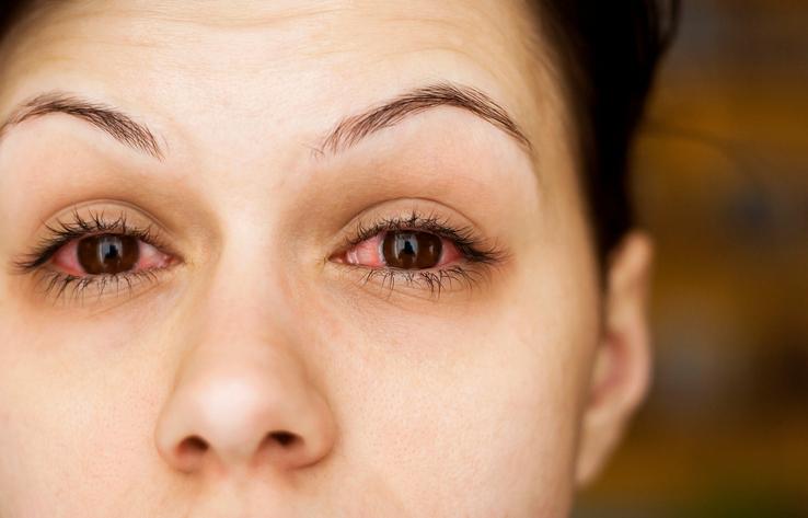 conjunctivitis, pink eye