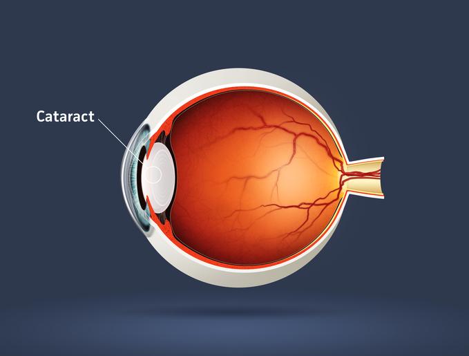 cataracts