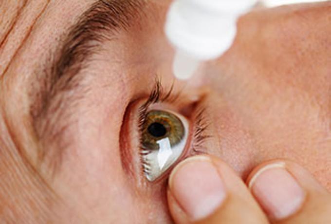 dry eye syndrome, dry eyes, dry eye