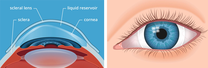 scleral contact lenses, keratoconus