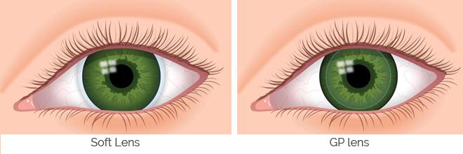 GP Lens, GP Lenses, Gas Permeable Lenses, rigid lenses, rigid contact lenses, Keratoconus