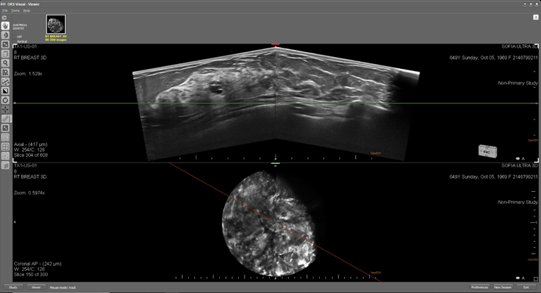 This is an ultrasound image of a female breast with a complex cysts. The top image displays the breast in an axial plane and the lower image displays the breast in the coronal plane.  The cystic structures are visible in the axial planes and exhibit posterior enhancement.  In addition the margin of the structure is slightly irregular and exhibits the accumulation of debris.