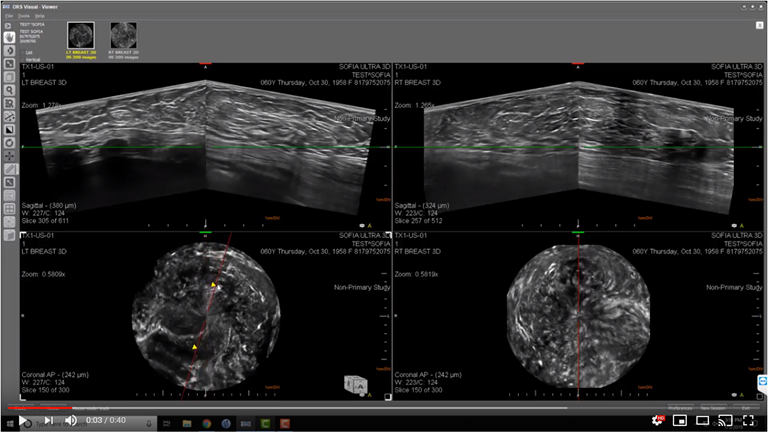 This is an image of a bilateral breast 3D Automated Breast Ultrasound (ABUS) exam of a female heterogeneously dense breast (BI-RADS C) .  Both the left an right breast are displayed are displayed on the monitors for rapid comparison.  The axial  and coronal slices of each breast are displayed.  The coronal image aids in determining the location of structures and the relative location of structures to one another.  The multi-planar reconstruction (MPR) enables the radiologist to view any structure from any perspective.  Thereby eliminating the need for call backs to obtain additional images from different perspectives.  The radiologist has the capability to window level, zoom-in zoom-out, pan, measure linearly, measure volumes, rotate 3D volume, rotate plane, adjust slice thickness, thin MIPS, synchronize review, compare studies for breast cancer therapeutic monitoring.  The SOFIA 3D Automated Breast ultrasound (ABUS) exam is capable of penetrating through Extremely Dense Breast Tissue (BI-RADS D) and   Heterogeneously Dense Breast Tissue (BI-RADS C) enabling visualization to the pectorals muscle.