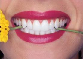 Smile-1a