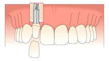 implants1-4