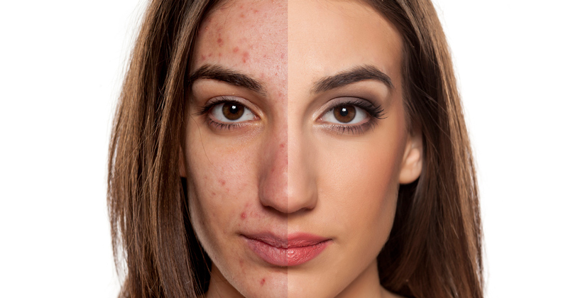 microneedling tampa befor and after
